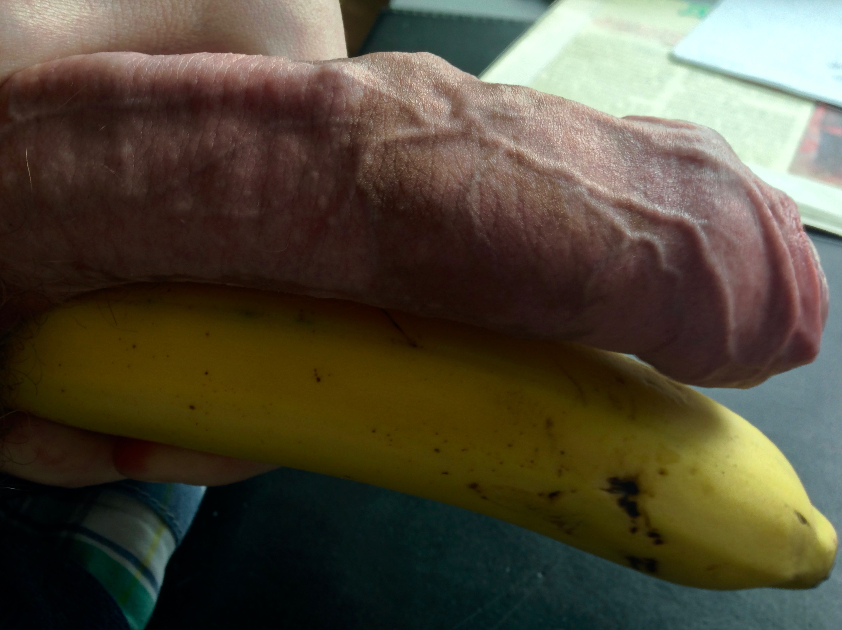 Another very interesting foreskin