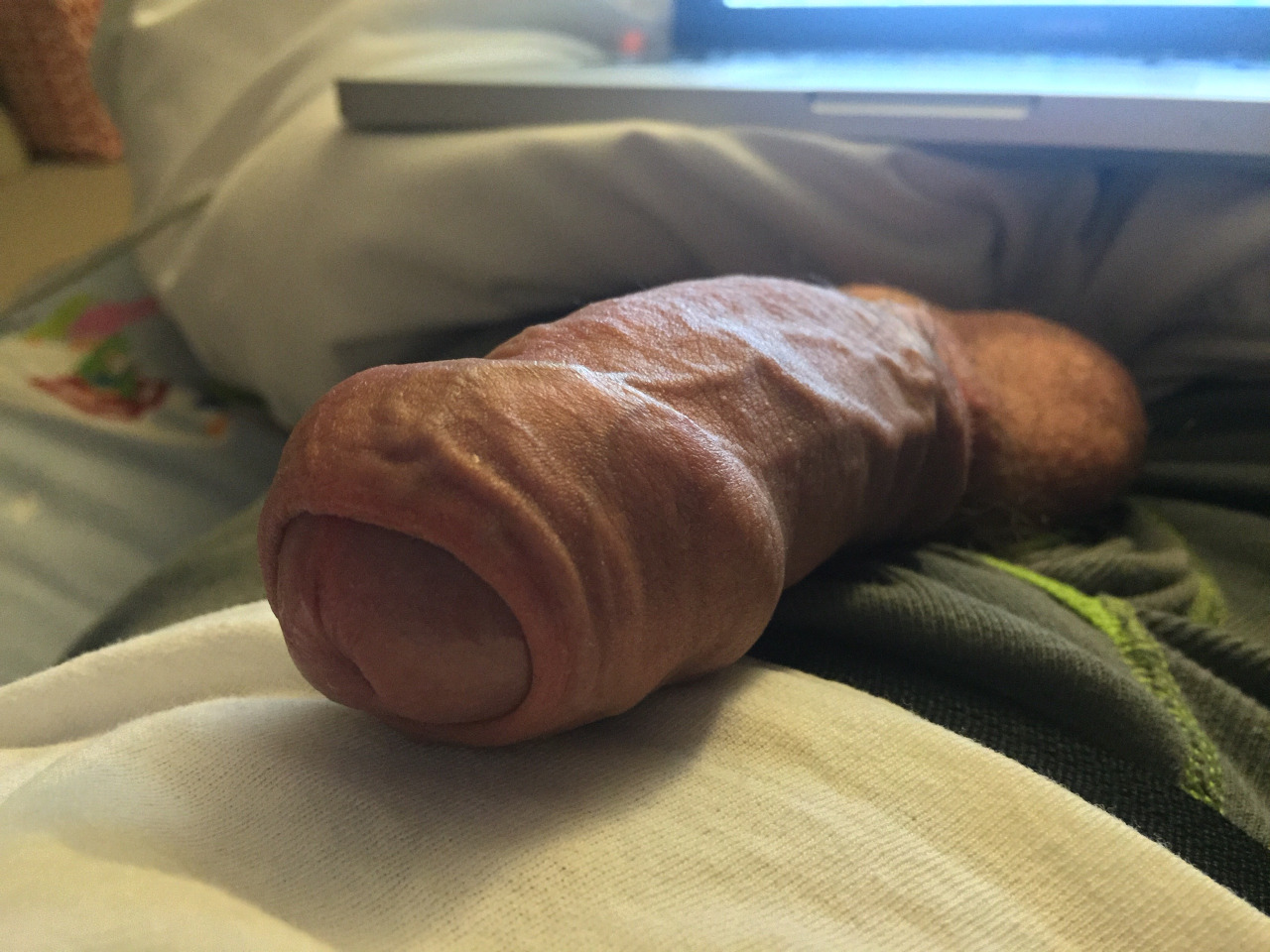 Penis head covered