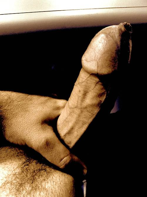 Tight foreskin